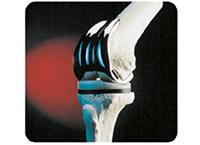Polishing Compound Removal From Orthopaedic Implants